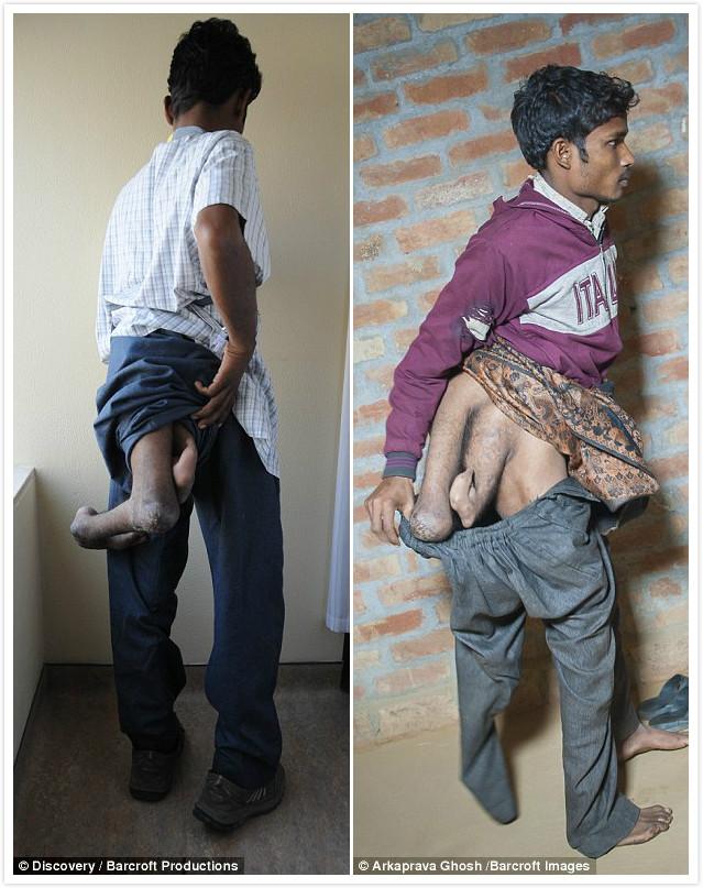 22歲印度男「天生有4隻腳」2隻畸形腳長在腰後,褲子脫下看「看起來像另一個身體」!