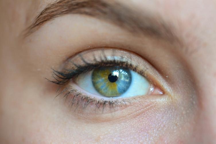 16個會讓你忍不住一直看的「最美麗雙色突變眼睛」,#9狗狗眼睛是上黑下白!