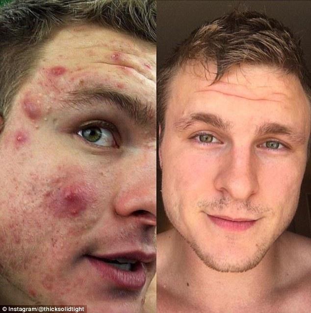 滿臉痘痘→牛奶肌的他分享「絕對抗痘7神招」。#3絕對不能「這麼做」!
