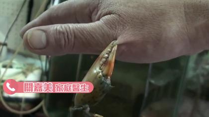 大陸民眾吃蟹差點要「截肢保命」,雙手腫脹得像豬腳一樣!