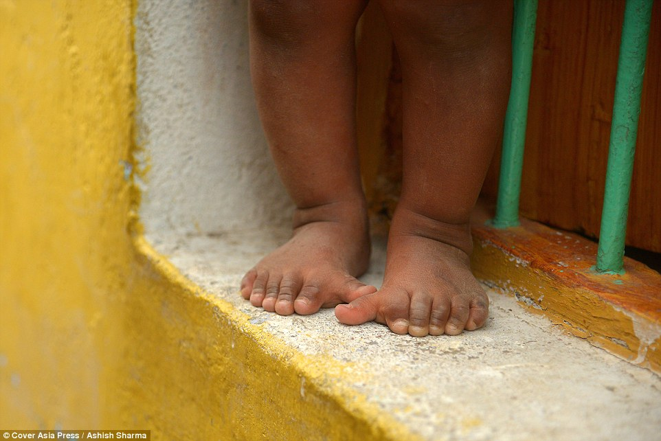 印度家庭怪基因「600隻手指腳趾」沒人敢靠近,拿工具方式看起來很厲害?