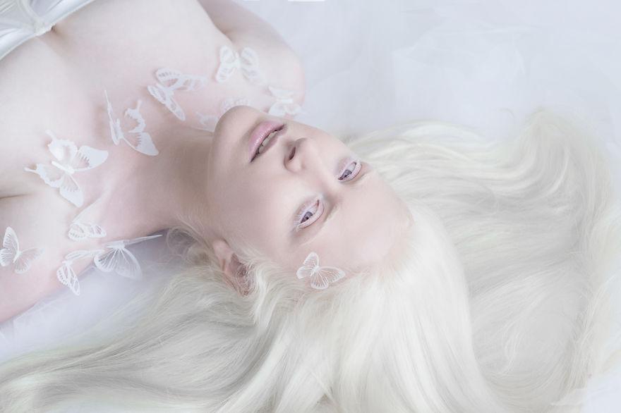11張「白化症人+動物就是最美」的完美夢幻照。