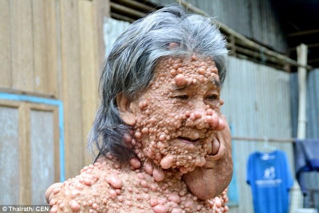 泰男患怪病「全身長滿泡泡腫瘤」遭家人唾棄只因泰王重見天日,遭遇讓人看到人間黑暗面。