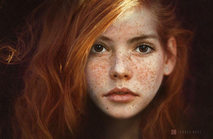 35張證明「雀斑其實可以讓人更美」的雀斑美人照。