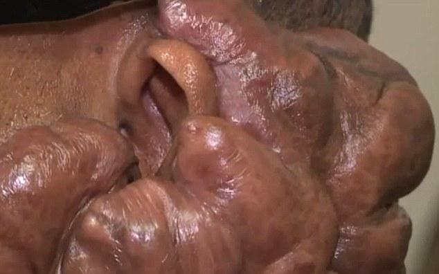 黑人男子刮鬍子受傷「竟長出肥大腫瘤」脖子快被吃掉,亞洲人也要小心!