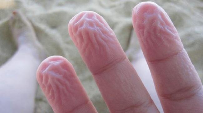 9個超神奇的「身體保護機制」 皮膚碰到水的「皺褶」其實救了你一命!