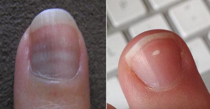 如果你的指甲上出現「奇怪白斑」,那真的必須趕快去看醫生了!