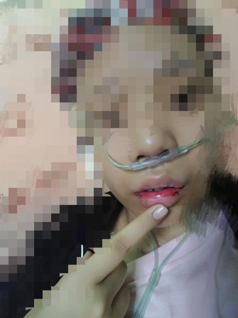 白血病病友PO照分享「化療有多痛?」堅強宣言感動數萬網友...