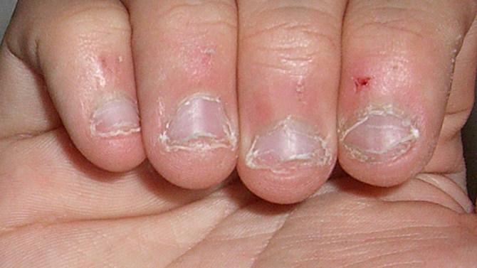 他從小養成「咬指甲的壞習慣」咬到手指都沒知覺了,40歲時就因為這樣死掉了...