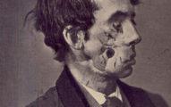 10張看完會珍惜先進醫療技術的超瘋狂「200年前戰後傷者照片」!(慎入)