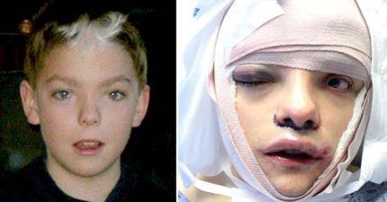 她從小就「不敢看鏡子」5小時化妝才敢出去,成年後花100萬元做「臉部女性化手術」!