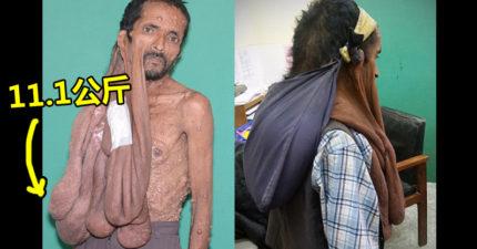 可怕怪病讓他「右臉懸掛多顆石頭」47年苦不堪言,這些人的善心讓他終於活得「一身輕」!