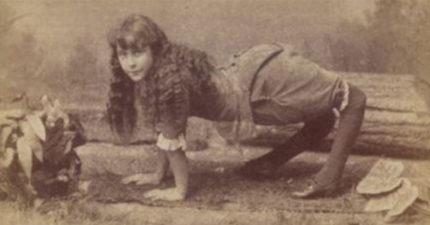 每10萬人就有1人可能「只能像動物一樣在地上爬」,努力用雙腳走路的樣子令人心疼...