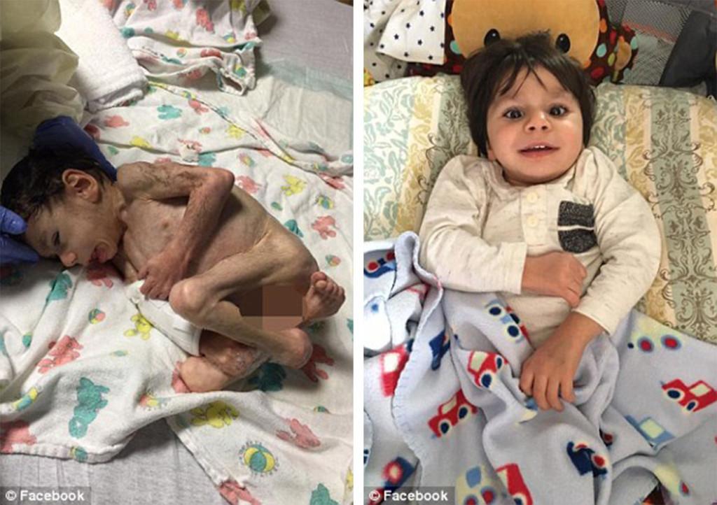 她領養「7歲只重3.6公斤」幾乎就要死掉的男童。1年後男童模樣證明「愛能產生奇蹟」!