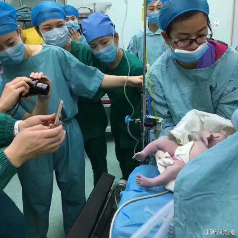 127公斤媽媽生小孩出動「16位醫生」困難到從後面開洞,網友罵:「太不稱職!」