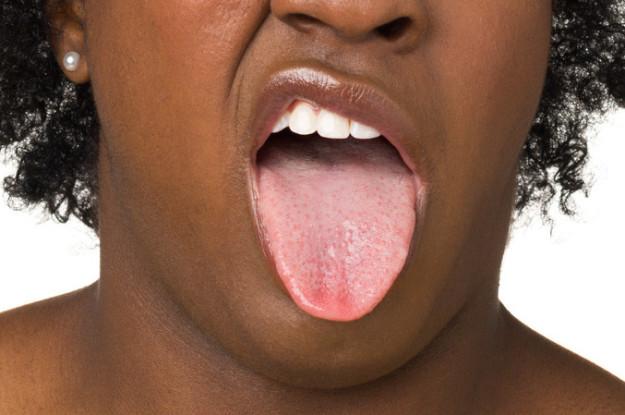 被食物燙傷舌頭會造成「一級燒傷」長水泡!解法其實很簡單!