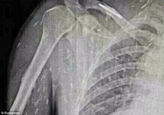 愛吃生魚片的後果!中國男愛吃生魚片「皮膚癢癢的」,照X光發現已經變成「蟲人」了!
