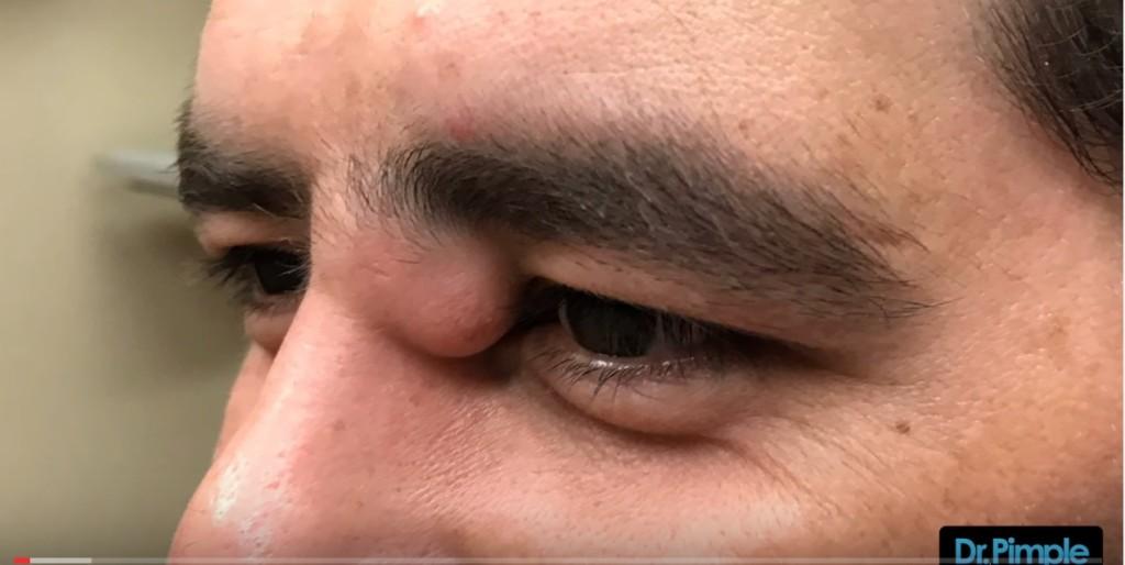 痘痘醫擠出快變成「第三隻眼」的巨痘,2:00爆炸時會讓你整天超爽!