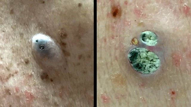 擠痘博士分享了她的「10大精選擠痘片」,目的就是讓你紓壓到明年!