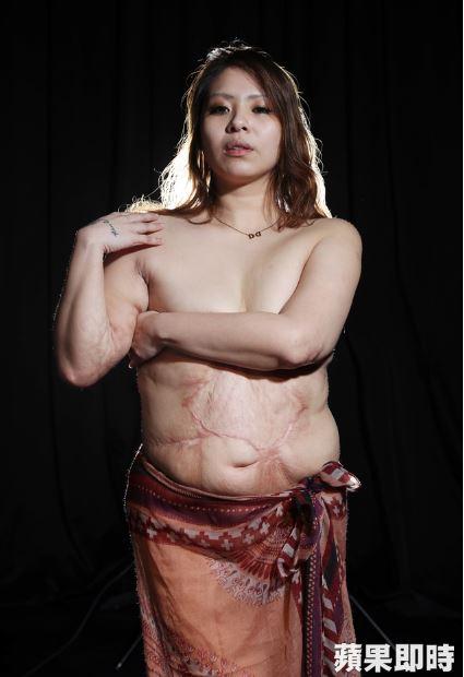 36歲單親辣媽當「半裸外拍模特兒」,秀出肚子燙傷疤網友讚:「很美!」