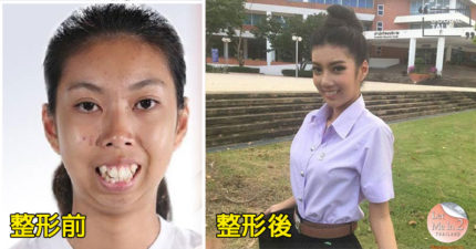 泰國真人節目送19歲暴牙妹去整形蛻變成「新一代校園性感女神」,第二個女生改變更大!