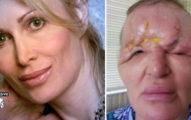 美魔女打填充物「額頭膨脹變獨眼外星人」隱居3年,手術後「終於美回來」讓她敢再次踏出家門!