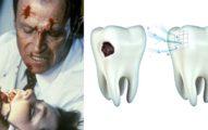 牙醫即將失業!阿茲海默藥「不小心」讓蛀牙「自行修復」長出健康新牙。如果你害怕鑽牙...