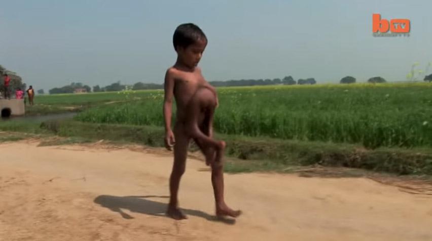 生出來天生是八肢的「寄生雙胞胎」體,手術完「跑得已經快比哥哥還要快了」!