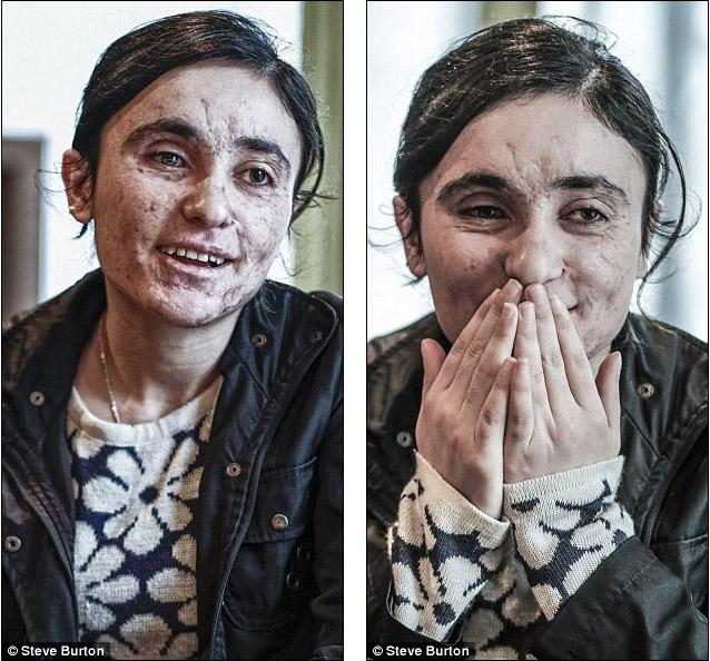 18歲的她只因信仰不同「淪ISIS性奴」每天被硬上,爆炸中逃脫只為告訴世人「我們在受苦」!