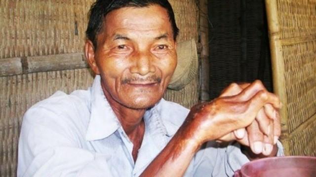 越南老爺爺「44年都沒有睡覺」時間爆多,醫生檢查身體都嚇壞!