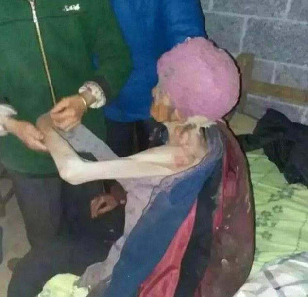 92歲老奶奶被兒子關在籠子裡「當豬養」,影片中「手臂只剩骨頭」兒:「她自願的」...