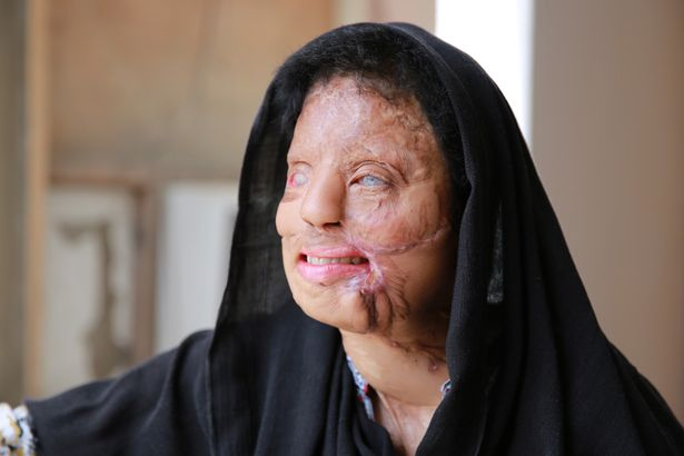 17歲印度美女拒絕性侵被報復「硫酸潑臉毀容」,手術後活出奇蹟得到完美的生活!