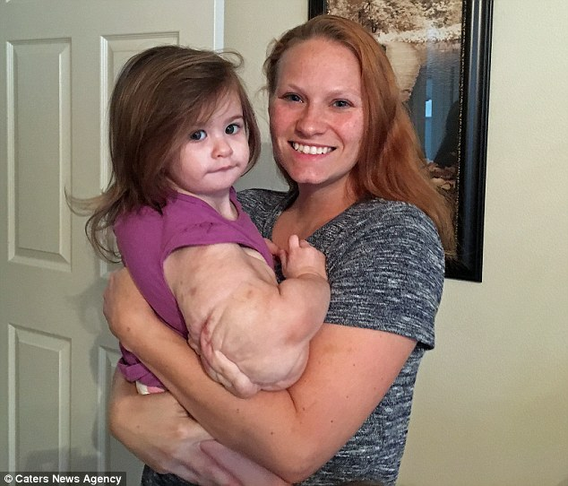 女童「浩克寶寶」一出生就患罕病,手臂長巨瘤等於日扛「一袋白米」每天治療兩次。