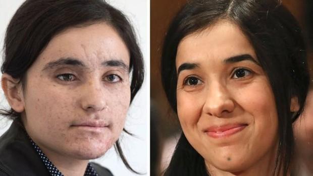 18歲的她只因信仰不同「淪ISIS性奴」每天被輪暴,爆炸中逃脫只為告訴世人「我們在受苦」!