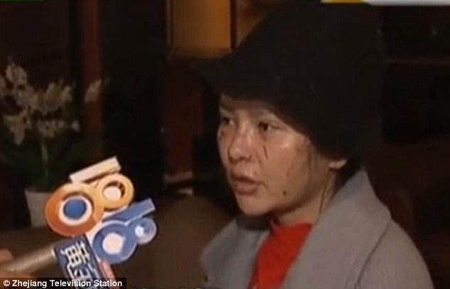 中國女子砸下30萬整形,結果整完「太漂亮」慘遭閨蜜恐怖毀容!之前照片超正!