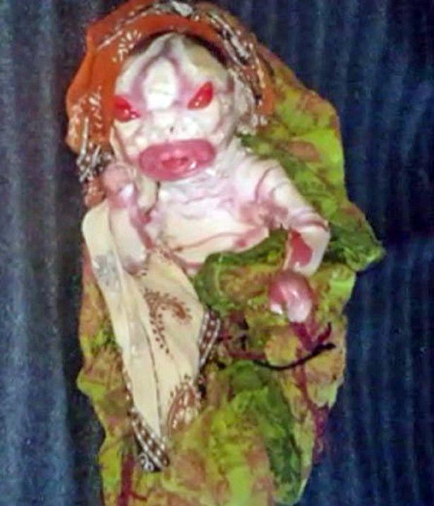 印度嬰兒「全身佈滿魚鱗酷似外星人」被家人嫌棄,媽媽不願哺乳:「只想要健康小孩。」(影片+非趣味)