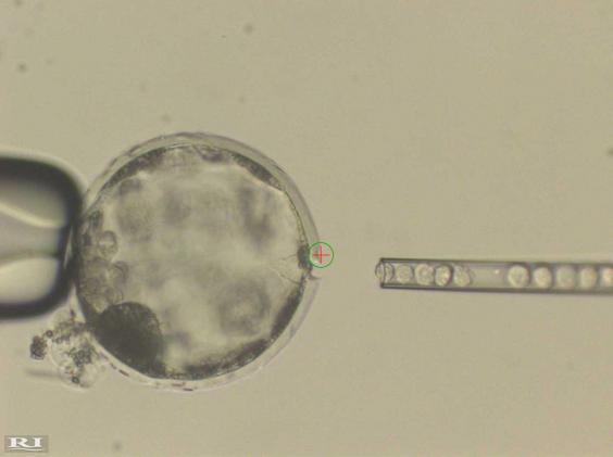 科學家成功首造出「人豬混種胚胎」會變成豬八戒?「避道德爭議」將拯救人類。