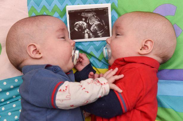 雙胞胎兄弟「羊膜囊裡」再拖下去會死掉,彼此「手牽手加油打氣」戰勝命運太感人!