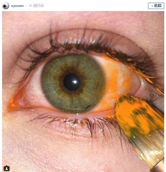 9張會把你嚇壞的「把東西放進眼睛」超毛照片!