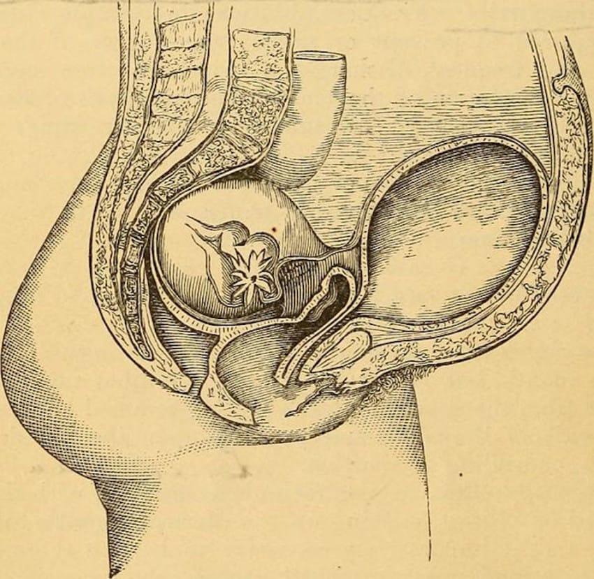 10個會讓你看到忍不住笑出來的「古代超荒謬女人身體迷思」。#2懷孕時不能看到醜八怪。