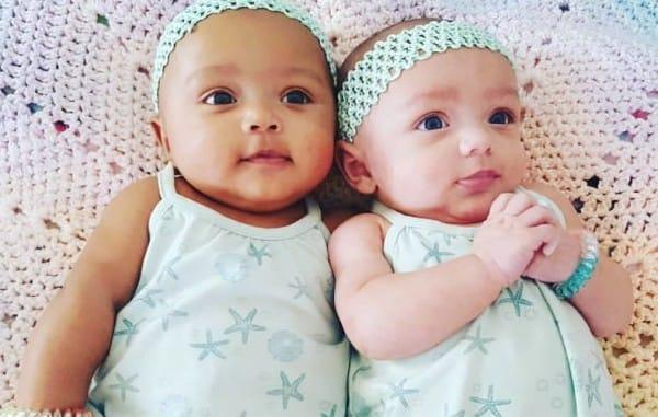 媽媽生下一對5億分之一機率「長得不太一樣」的黑白稀有雙胞胎,長大後的模樣更是奇蹟!