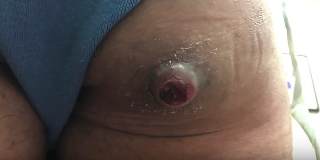 病人屁屁上長出超大火山痘痘,切開後「幸福之泉」源源不絕的噴了出來超紓壓!
