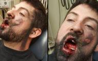 30歲男抽電子菸突然猛爆炸,嚴重燙傷「7顆牙被狠炸飛」天花板痕跡超恐怖...