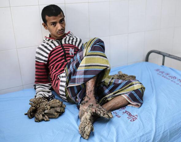 現實生活真正的「樹人」指頭長出樹根,16次手術後才看到真實手形!