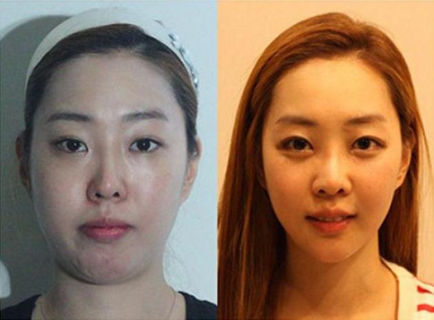 30幾張可能會讓你忍不住手刀去整形診所的「韓國最成功整形案例」。