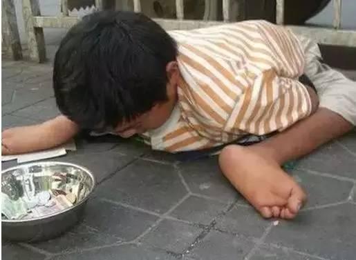 中國驚爆人口販子抓兒童「狠潑硫酸」逼乞討,看到不要給錢「拍下照片立刻上傳」!