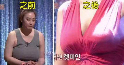 她受「巨乳G罩杯」困擾精神瀕臨崩潰,「臉部+胸部大改造」美到可以可當女主角!