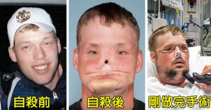 他在21歲因憂鬱症自殺「把一半臉轟掉」,10年後「56小時換臉手術」消腫後他變超帥找回快樂人生!