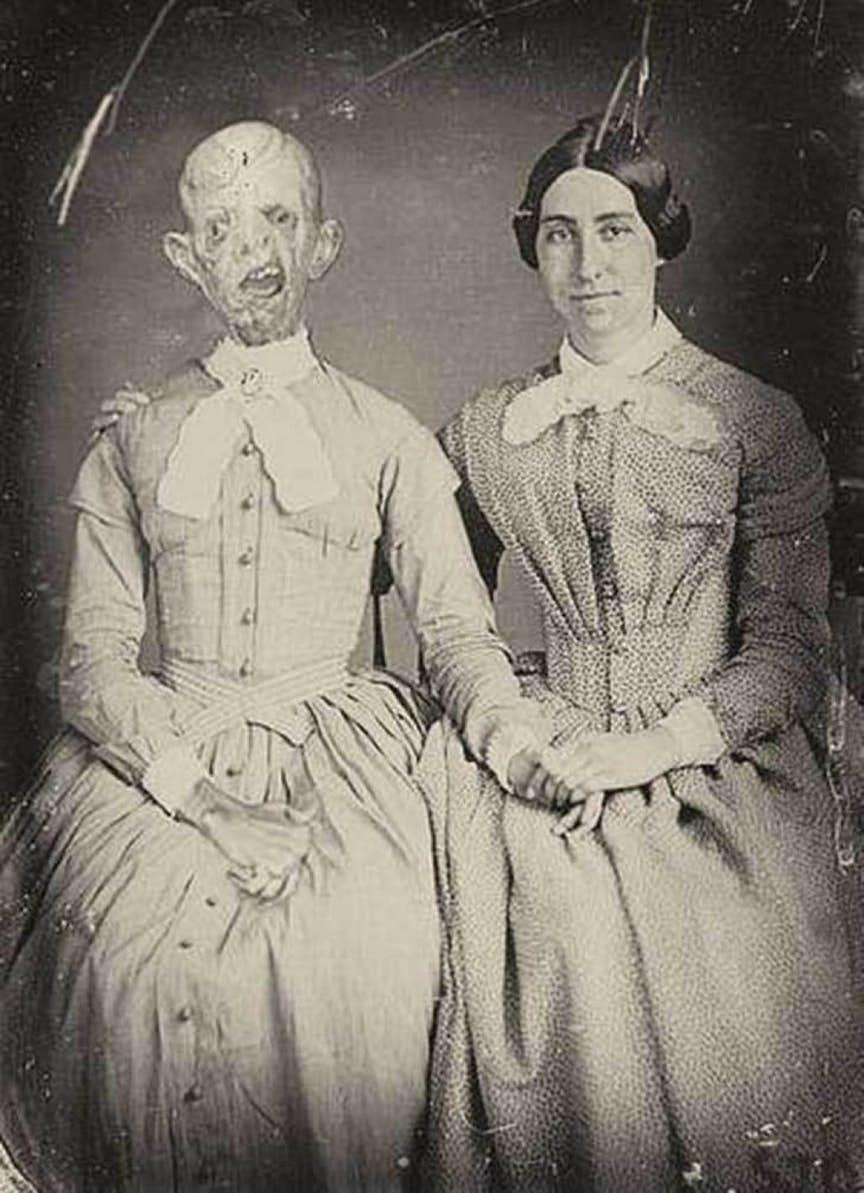 15張「背後的故事會讓你睡不著」的恐怖照片。真人皮膚做的手套...