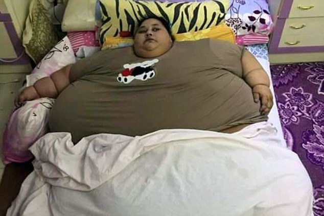 She has since been placed on a strict 1,200-calorie diet and lost a stone a day in her first five days at the hospital